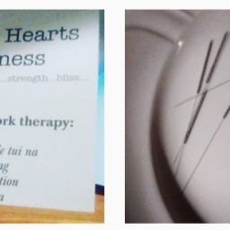 Tui na Treatment or Acupuncture: Which is Best for You? (Three Points to Ponder)